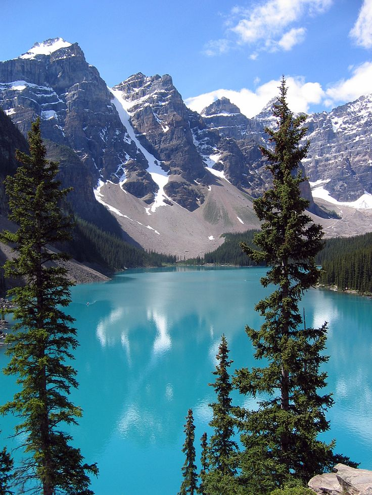 Moraine Lake, Canada This doesn't even look real.