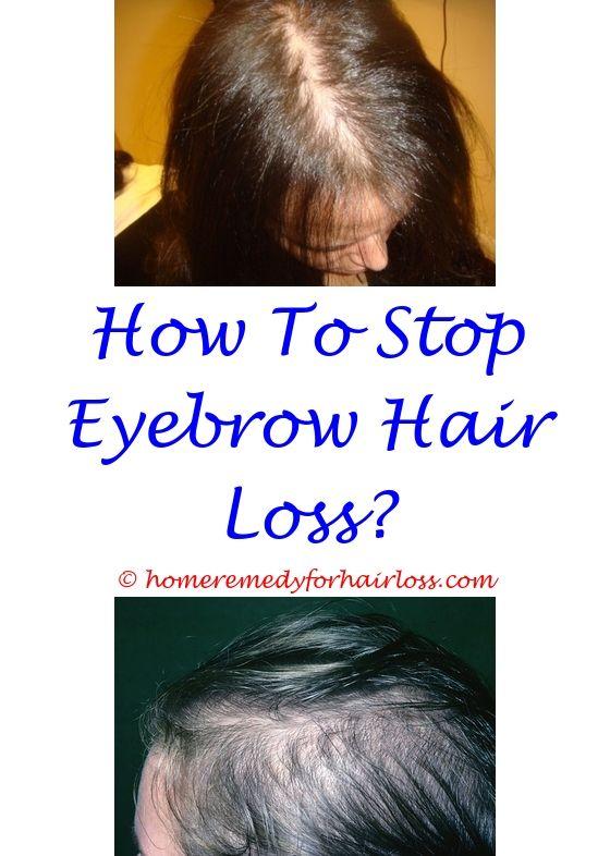 fingernails hair loss - what can an endocrinologist do for hair loss.does clonidine cause hair loss prenatal vitamins for female hair loss amitriptyline hcl hair loss 9806703455