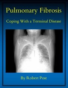 Pulmonary Fibrosis: Coping With a Terminal Disease by Robert Post What do you do when you learn you have Pulmonary Fibrosis, a terminal disease for which there is presently no cure? The author relates…  read more at Kobo.