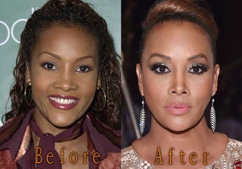 Vivica Fox Plastic Surgery Before And After Vivica Fox Plastic Surgery Before And After Boobs,Breast And Lips