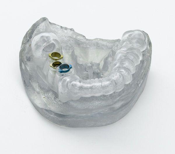 Guía quirúrgica fabricada en impresora 3D con material médico biocompatible. Su diseño se obtiene desde una tomografía, lo que permite perfección en la cirugía