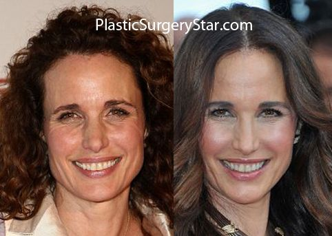 Andie Macdowell Plastic Surgery Celebrity Surgery