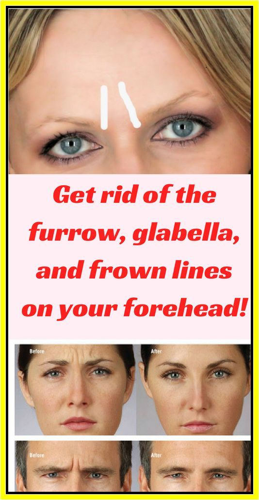 12991203f493808869d9ee1f45163265 - How To Get Rid Of Frown Lines Between Eyebrows Naturally