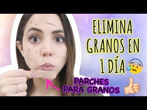 CÓMO QUITAR GRANOS EN 1 DÍA | What The Chic - YouTube