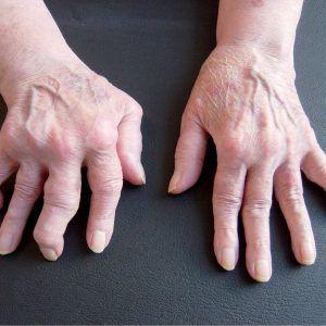 Cum m-am vindecat de reumatism cu un preparat facut in casa. Toata lumea trebuie sa afle