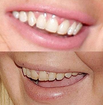 how to fix really bad teeth