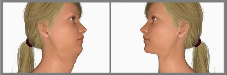 Also known as Sub-mental Liposuction, it is a minimally invasive procedure used to remove excess fat under the chin. This typically results in less bleeding and decreases healing time. In other words, it is a way to get rid of a double chin, jowls, or chubbiness under the chin.