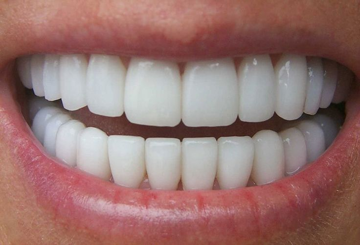 Perfect Teeth Shape PT15