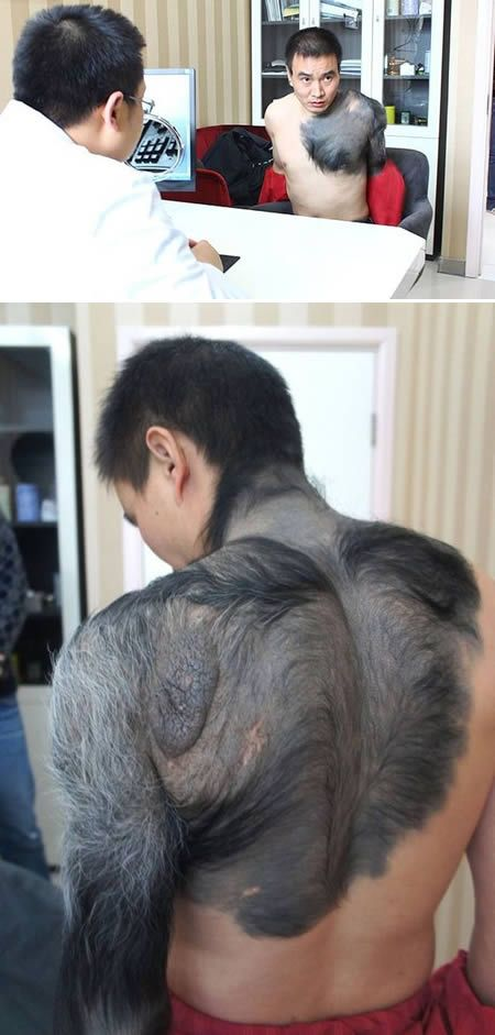 At first glance, this man looks like he is part-man, part-wolf, but look closely and you will see that it is actually a giant birthmark and body hair. Zhang Hongming from Chongqing, south-eastern China