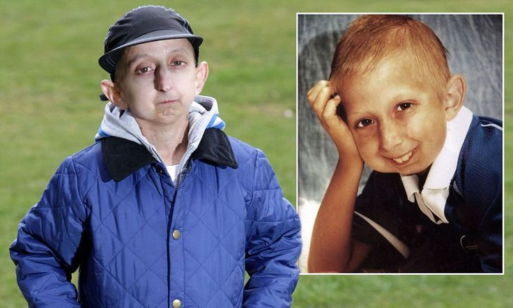 """Britain's oldest 20-year-old man has the body of a 160-year-old due to rare condition, Hutchinson-Gilford Progeria Syndrome (""""Progeria"""", or """"HGPS"""")"""