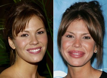 Nikki Cox  I think this gal was on that Las Vegas show with Josh Duhamel, and she's married to comedian Jay Mohr.  This is just unfortunate.  This is Jocelyn Wildenstein-like