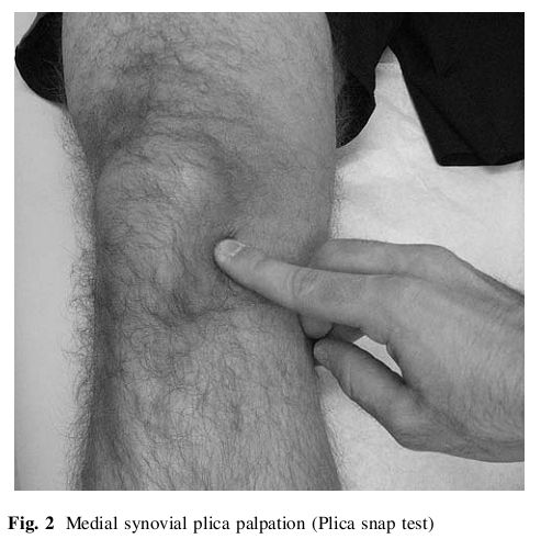 The location of discomfort of the medial plica.