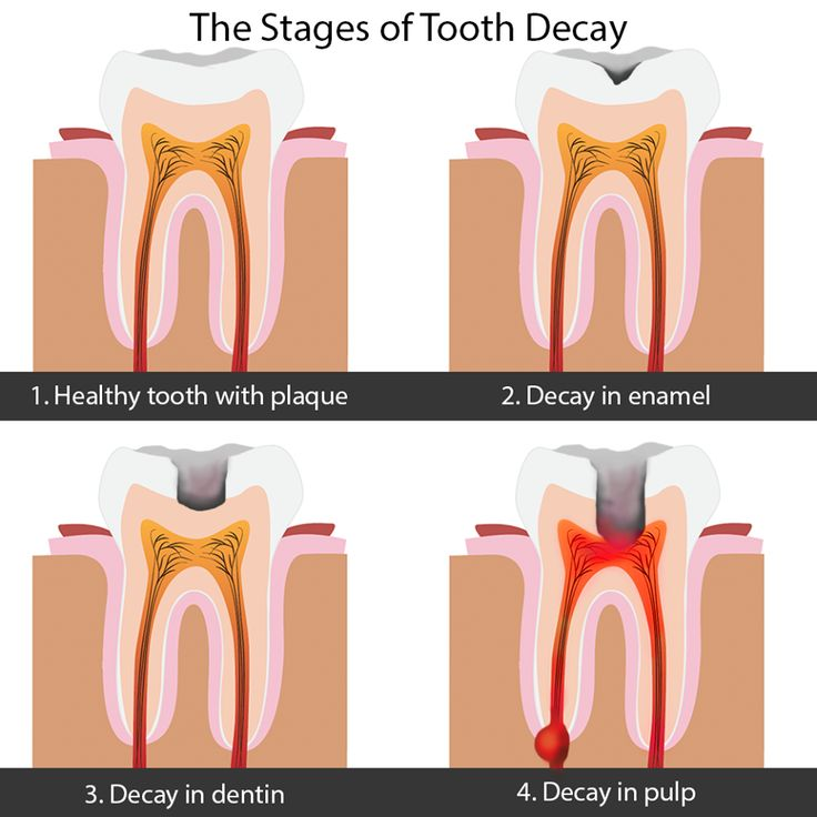 facts about fluoride that is use effetively in preventing tooth decay Parents should use toothpastes that contain fluoride with a preventing tooth decay can parents advised to use fluoridated toothpaste to prevent tooth decay.