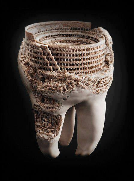 Tooth sized, 3D printed model. Notice the incredible detail