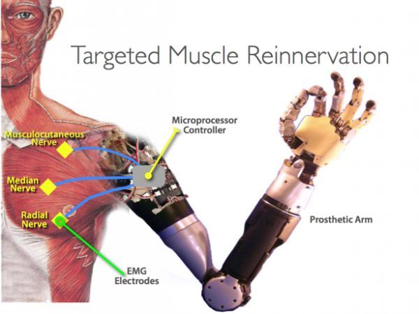 Limb regeneration: Scientists have discovered that the human brain can remap nerves and motor pathways to artificial limbs