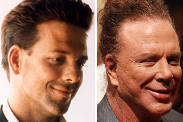Check out Mickey Rourke from Celebrity Plastic Surgery Fails