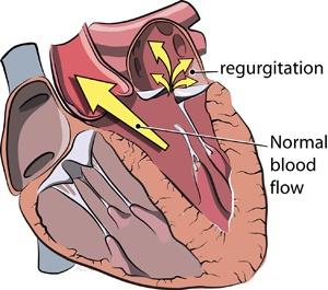 Mitral valve regurgitation.  Will's other heart defect as a result of a deformed valve.