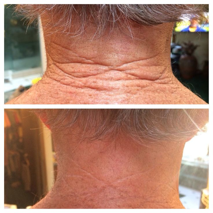 Nerium Firm 2 weeks on sun baked neck!! Get ready for Summer with Nerium firm http://www.WindyTevlin.nerium.com