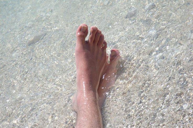 Remedio para el hongo negro en una uña engrosada del pie | Muy Fitness