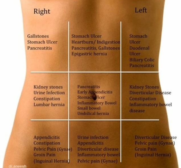 289848925988366838 on abdominal pain location diagram