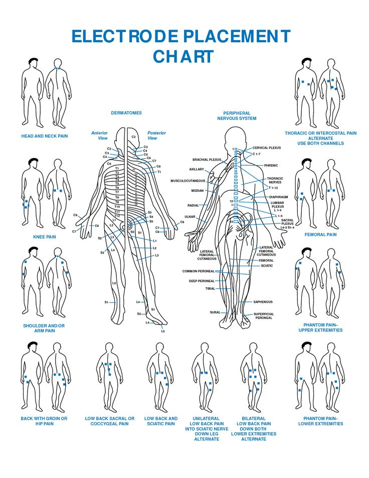 10 Best Images About Tens Unit Placement Charts On