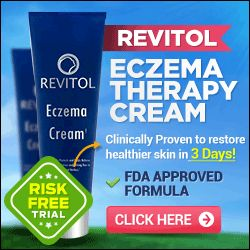 Does your skin itch with no breakout? Then you could be a sufferer of scratchy skin without rash. Here I will certainly provide you with several of the... http://itchydryskin.info