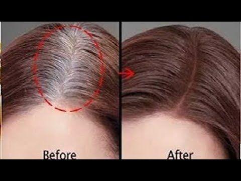 يخترق فروة الرأس ويعالج شيب الشعر ومن غير صبغة التخلص من الشعر الابيض نهائيا قبل العيد Youtube Hair Remedies Hair Growth Tips Haircut And Color