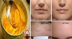 Μια δροσιστική, τονωτική μάσκα με κουρκουμά. Θα σας βοηθήσει να βελτιώσετε την όψη της επιδερμίδας του προσώπου σας, κάνοντας το δέρμα σας απαλό και χαρίζοντας του λάμψη. Ιδανικό για όλους τους τύπους δέρματος. Βοηθάει πολύ στην ακμή και στους μάυρους κύκλους κάτω απο τα μάτια. Υλικά 1/2 κ.γ. σκόνη κουρκουμά 4 ροδέλες αγγούρι 2 κ.σ.