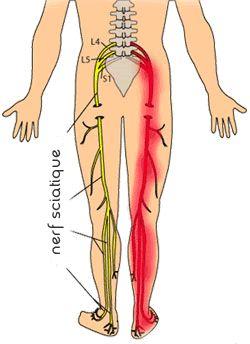 Sciatique et Sciatalgie : causes, symptômes diagnostic et traitement