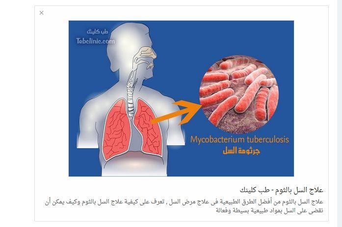 علاج مرض السل بالثوم Tuberculosis Pals