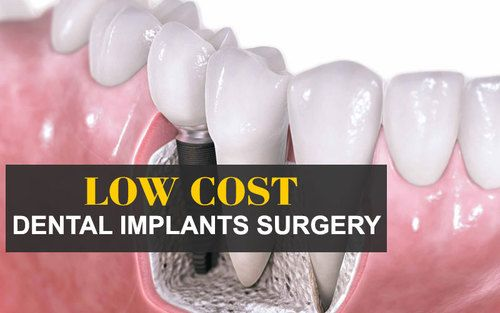 Low Cost Dental Implant : Vijay Multispeciality Dental Hospital are the best dental Implant Specialist in Chanda nagar Hyderabad offer very low cost dental implants surgery. More information to enqire through Quick Enquiry Box http://hyderabad-dentist.com/ | vijay123