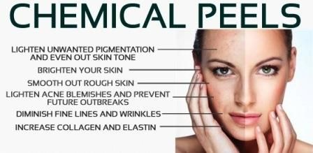 Chemical Peels : Medical-grade skincare like chemical peels can nourish and replenish aging or sun-damaged skin to help your complexion look rejuvenated and refreshed. A chemical peel removes the outermost layer of skin cells to reveal the healthy, unblemished skin below, and comes in different degrees of intensity for customized results.