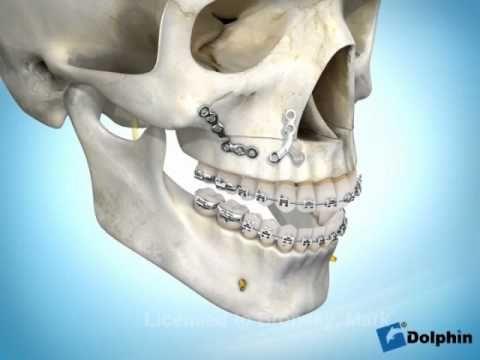Lefort 1 Osteotomy Possible Segmental and Bilateral Mandibular Sagittal Split Osteotomy Advancement What a mouthful! On Monday. M… | Jaw surgery ...