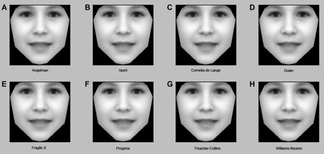 Rare genetic disorders diagnosed by computer analysis of photos
