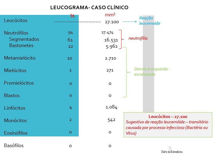 Leucograma   É uma parte do hemograma onde são avaliados os leucócitos, também conhecidos como série branca ou glóbulos brancos. São célul...