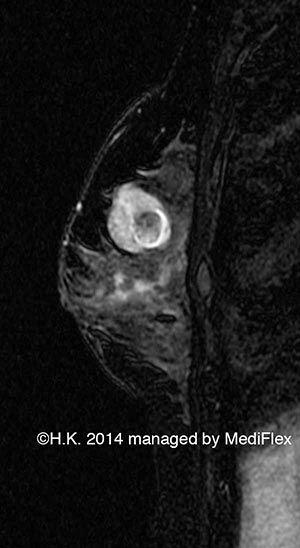 Case 003, Fibroadenoma with Degeneration, image 4, FS-MRI T2WI