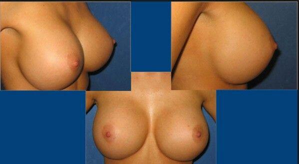 dd 48 boob