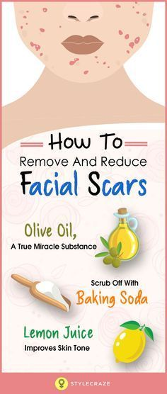 Girls who have oily and acne-prone skin, might suffer from the embarrassment caused by acne scars. Not only oily-skinned women but even combination skinned girls stand the chance of suffering from acne and acne scars. Acne tends to mellow down eventually but it makes sure to leave behind a few scars just to remind us that it can be back any time. So, you must be thinking, is there a way to get rid of these facial scars without going for laser treatments?