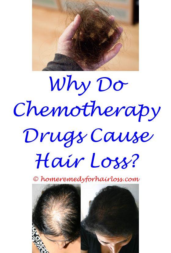 male hair loss stages - anti hair loss shampoo uk.bengal cat hair loss can diet reverse hereditary hair loss insulin hair loss 7512961777