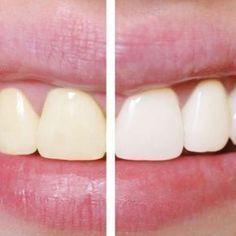 Zo krijg je hagelwitte tanden zonder je tanden te bleken! Dit is zo simpel!