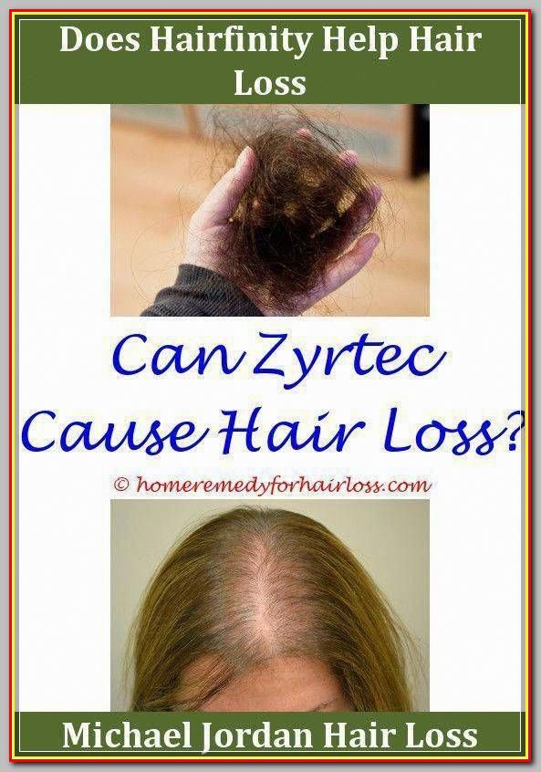 Postpartum Hair Loss Is A Normal And Temporary Postpartum Change That Is Unrelated To Breastfeeding Most Women Hair Loss Help Hair Loss Hair Loss Remedies