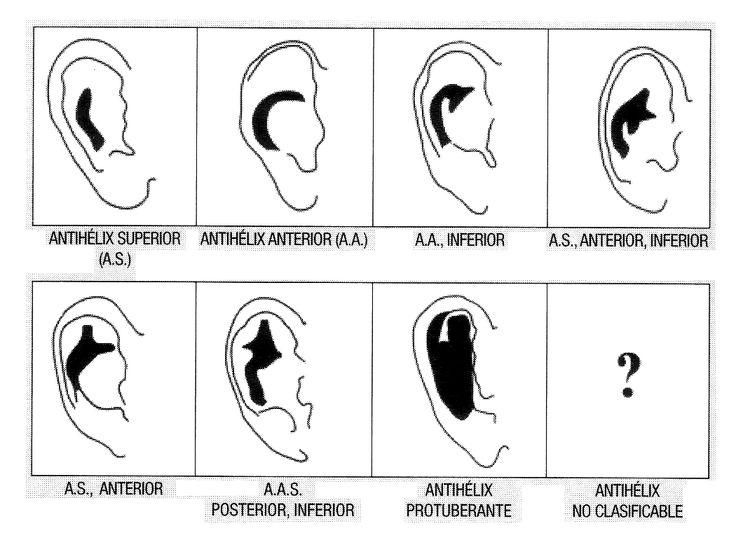 Tipos de orejas