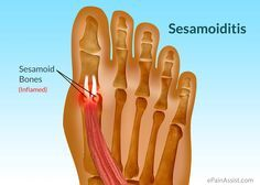 Do you have pain in your big toe? You may be suffering from a condition we treat in the office all the time called sesamoiditis.
