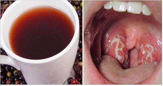 Como se livrar de uma infecção de garganta
