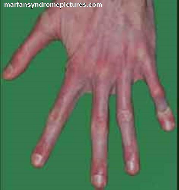 Heart Disease and Marfan Syndrome