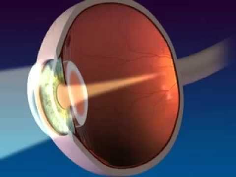 cómo el ojo humano hace para ver los objetos.