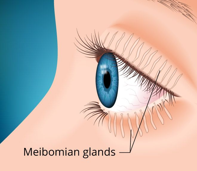 "If you have meibomian (""my-BOH-mee-an"") gland dysfunction, which causes dry eyes, you may need more than just eye drops. Click the image to learn more."