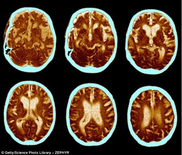 COULD CANNABIS CURE ALZHEIMER'S? DRUG'S ACTIVE INGREDIENT 'HELPS REMOVE KEY TOXIC PROTEIN FROM BRAIN CELLS'