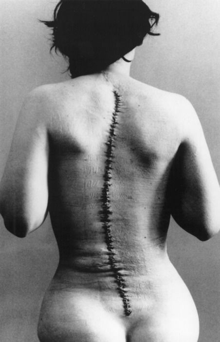 Spinal Surgery. Not sure who the photographer is. Vintage. Intense.