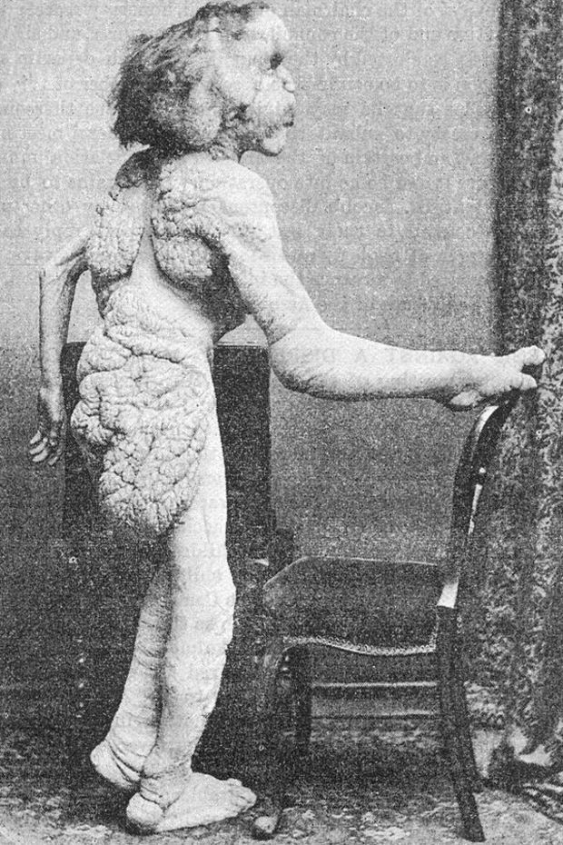 """A photograph of Joseph Merrick, known as the """"Elephant Man"""". This photograph of Joseph Merrick, known as the """"Elephant Man,"""" was published in the British Medical Journal with the announcement of Merrick's death in 1890."""